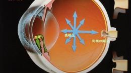 緑内障の断面図(房水・高眼圧・乳頭の陥没)