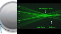 多焦点眼内レンズ(屈折型IOL)