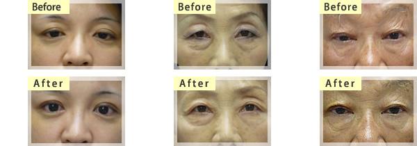 眼瞼下垂の症状と手術後3名