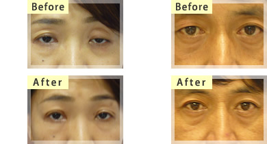 眼瞼下垂の症状と手術後2名