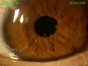 PTK手術後の眼