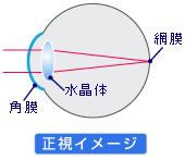 正視のイメージ