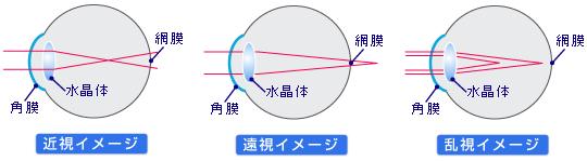 近視・乱視・遠視のイメージ