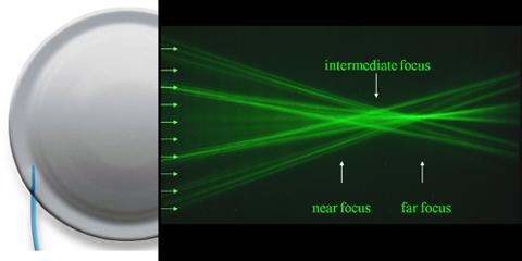 屈折型IOL図1