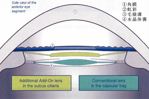 図4:追加型IOL